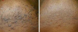 nd yag laser ontharen donkere huid